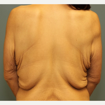 35-44 year old woman requesting treatment of bra rolls and loose back skin. before 3031243