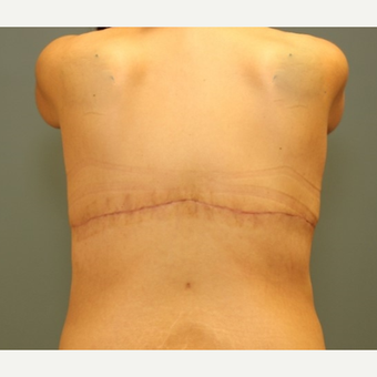 35-44 year old woman requesting treatment of bra rolls and loose back skin. after 3031243