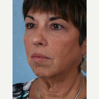 55-64 year old woman treated with Facelift before 3032781