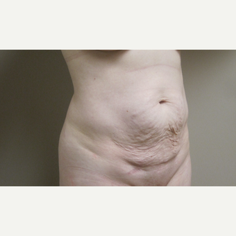 Tummy Tuck before 3630625