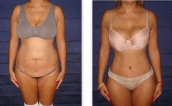 35 year old woman treated with Tummy Tuck before 3726810