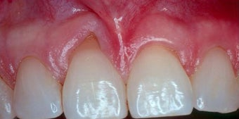Gum Graft before 515405
