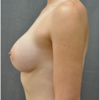 25-34 year old woman treated with Breast Implants after 3459808