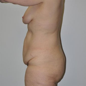 45-54 year old woman treated with Body Lift 1828987