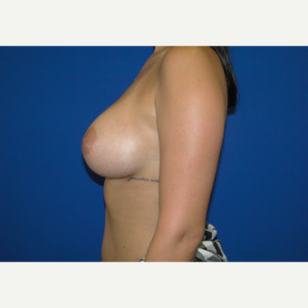 Breast Augmentation with 350 cc Silicone Implants after 3666111