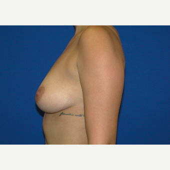 Breast Augmentation with 350 cc Silicone Implants before 3666111