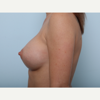 Breast Augmentation after 3459754