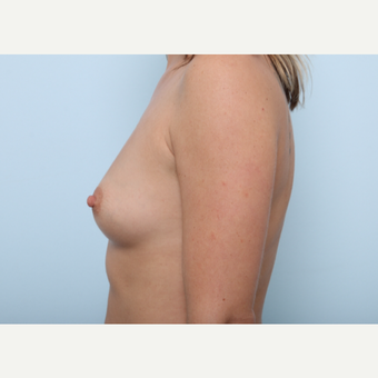 Breast Augmentation before 3459754