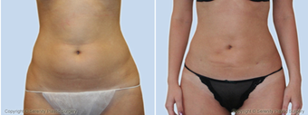 Liposuction  before 214365