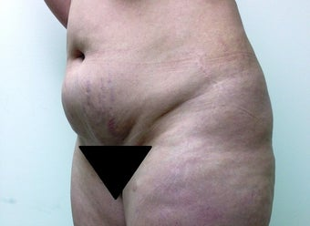 Liposuction of Thighs before 1165071