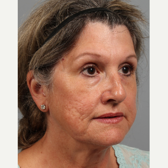 55-64 year old woman treated with Facelift before 3343735