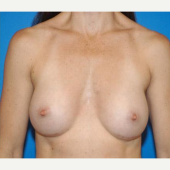 Breast Augmentation after 3206510