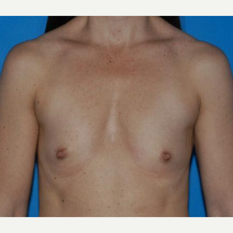 Breast Augmentation before 3206510