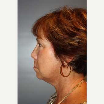 55-64 year old woman treated with Facelift after 3683627