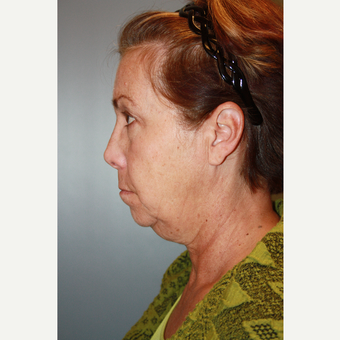 55-64 year old woman treated with Facelift before 3683627