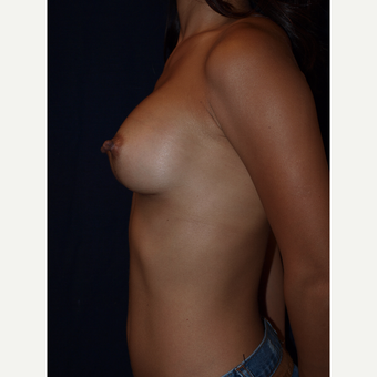 25-34 year old woman treated with Breast Augmentation after 3082380
