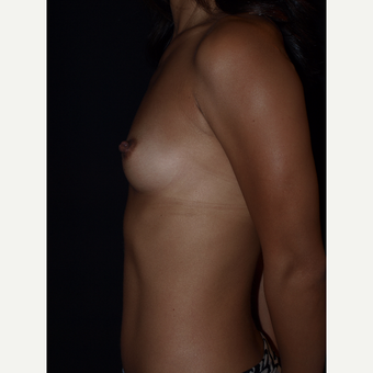 25-34 year old woman treated with Breast Augmentation before 3082380