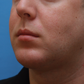 Young man treated with Chin Implant after 3383640