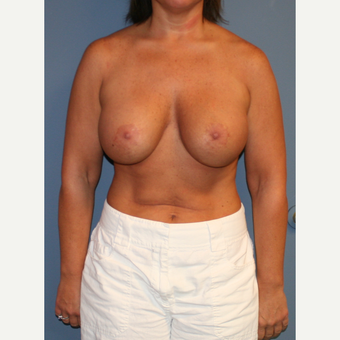 25-34 year old woman treated with Breast Lift with Implants after 3512189