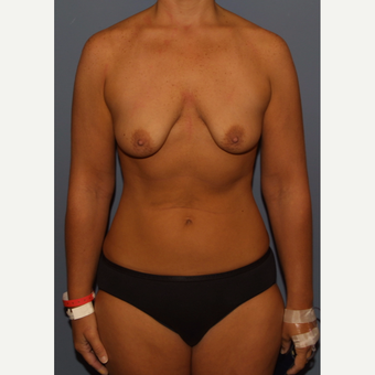25-34 year old woman treated with Breast Lift with Implants before 3512189