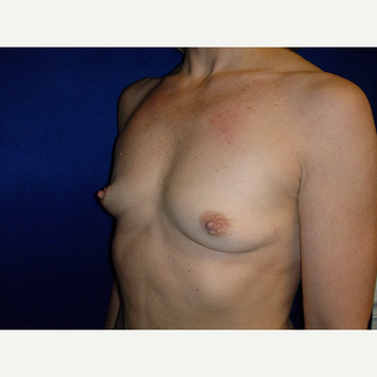 35-44 year old woman treated with Breast Augmentation before 3727163
