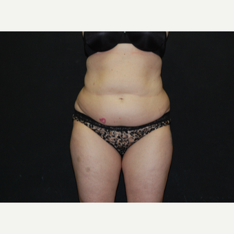 35-44 year old woman treated with Tummy Tuck before 3076455