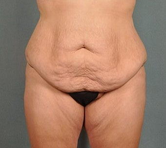 30 year old woman treated with Body Lift