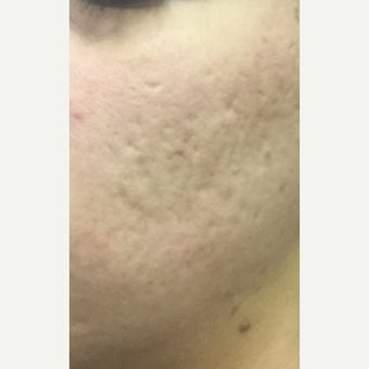 25-34 year old woman treated with CO2 Laser before 2081892