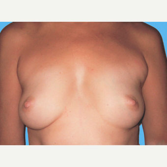 Breast Augmentation before 3732650