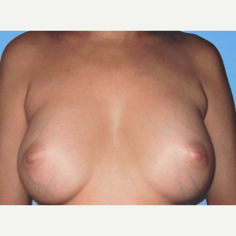 Breast Augmentation after 3732650