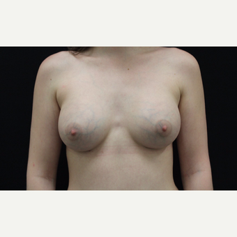 18-24 year old woman treated with Breast Augmentation after 3099080