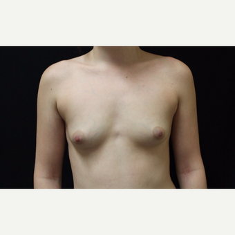 18-24 year old woman treated with Breast Augmentation before 3099080