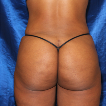 35-44 year old woman treated with Brazilian Butt Lift after 3452876