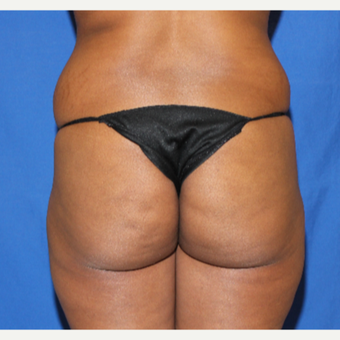 35-44 year old woman treated with Brazilian Butt Lift before 3452876