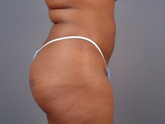 29 Year Old Female: Smart Lipo 1440052