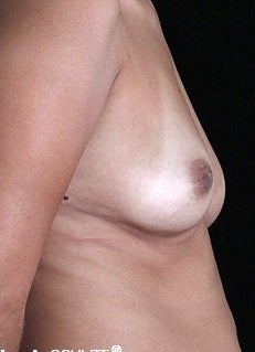 35-44 year old woman treated with Breast Augmentation before 3127223