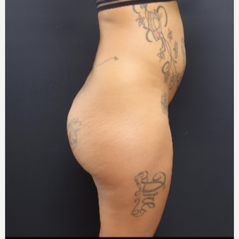 25-34 year old woman treated with Fat Transfer and 712cc Implants before 3129321