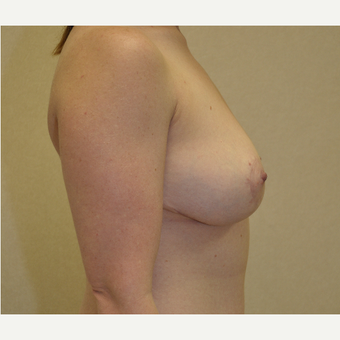 35-44 year old woman treated with Breast Reduction after 3103154