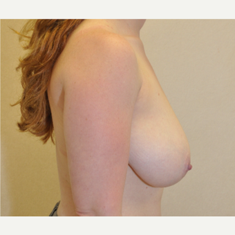 35-44 year old woman treated with Breast Reduction before 3103154