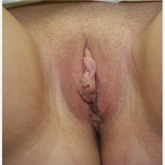 25-34 year old woman treated with Labiaplasty before 2815325