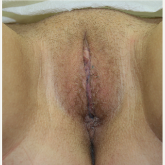 25-34 year old woman treated with Labiaplasty after 2815325