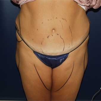 35-44 year old woman treated with Liposuction to revise Tummy Tuck before 3146966