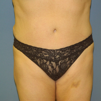 35-44 year old woman treated with Liposuction to revise Tummy Tuck after 3146966