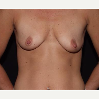 25-34 year old woman treated with Breast Implants before 3593545