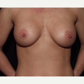 25-34 year old woman treated with Breast Implants after 3593545