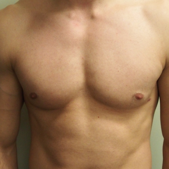 18-24 year old man treated with Male Breast Reduction after 3743449
