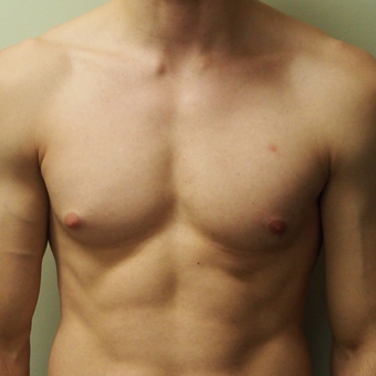 18-24 year old man treated with Male Breast Reduction before 3743449