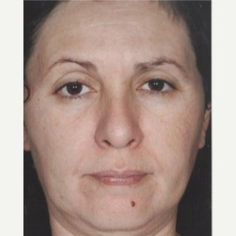 55-64 year old woman treated with Age Spots Treatment with Obagi Nu Derm Skin Transformation System after 2581707
