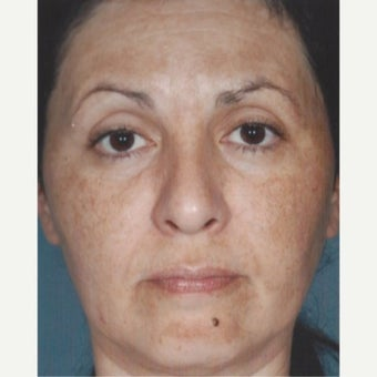 55-64 year old woman treated with Age Spots Treatment with Obagi Nu Derm Skin Transformation System before 2581707