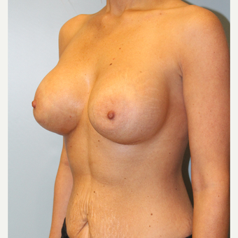 25-34 year old woman treated with Breast Implants after 3106685